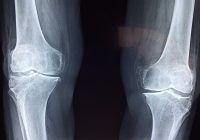 Mit şi adevăr despre protezele de genunchi. Cât contează excesul ponderal sau vârsta, când e vorba de proteze