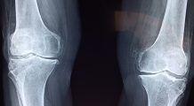 Avantajele artroscopiei, procedura minim invazivă care ajută atât la diagnosticarea, cât şi la tratarea leziunilor articulaţiilor, tendoanelor şi cartilajelor