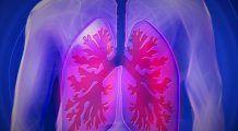 Atenție la tusea care nu mai trece! Testul care îți spune dacă ai putea avea această boală de plămâni