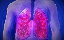 Cancerul pulmonar, unul dintre cele mai agresive forme de cancer. 90% dintre bolnavi au făcut sau fac acest lucru