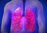 Statistică ALARMANTĂ despre CANCERUL PULMONAR, în România! 75% dintre pacienții diagnosticați cu această boală ajung la medic PREA TÂRZIU, în stadiu inoperabil