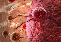Corpul uman este uimitor! Atât de avansat, el ucide celule canceroase în fiecare zi. Un singur lucru îl reduce la tăcere