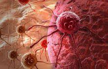 Soluția salvatoare pentru pacienții cu cancere avansate: imunoterapia și terapiile țintite