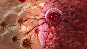 Soluția salvatoare pentru pacienții cu cancere avansate: imunoterapia si terapiile țintite