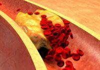 Înfundarea arterelor, problema medicală gravă pe care o poți preveni consumând aceste 10 alimente zilnic