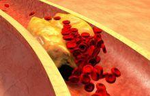 Semnele de alarmă care te anunță că nivelul colesterolului e foarte crescut