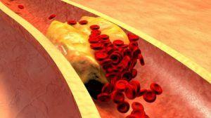 Hipertrigliceridemia, boala tacuta care creste riscul de infarct si atac cerebral