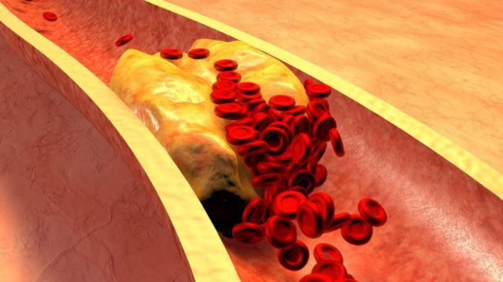 """Hipertrigliceridemia, boala """"tăcută"""" care crește riscul de infarct și atac cerebral"""