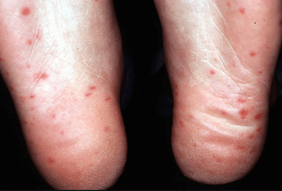 Ce este boala mână-gură-picior și cât este de periculoasă