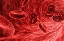 Unul dintre cele mai rare tipuri de cancer, tulburare de coagulare a sângelui