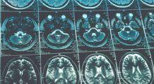 Virusul incredibil care DISTRUGE cancerul creierului și ACCELEREAZĂ sistemul imunitar