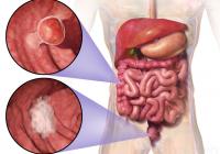 Mulți polipi sunt inofensivi, dar unii se pot transforma în CANCER COLORECTAL. Ce trebuie să știți