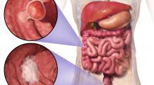 Lipsa de mișcare, obezitatea și fumatul sunt primii trei factori declanșatori ai acestui cancer devastator, aflat pe locul 4 ca incidență în România
