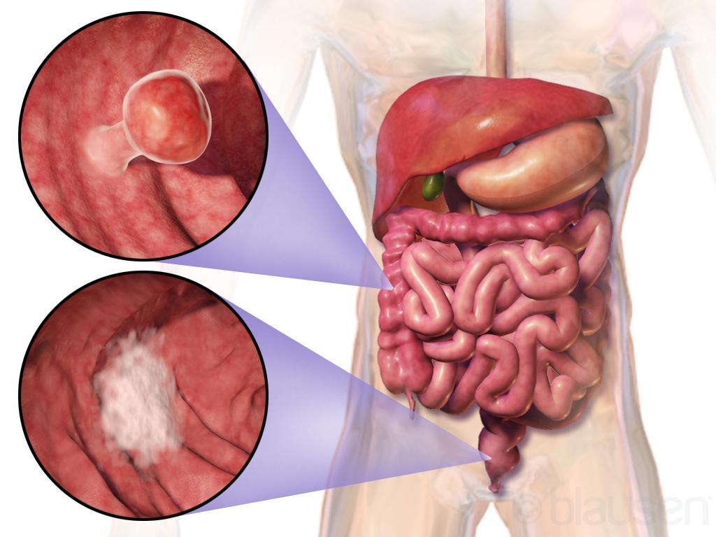 De la POLIPI inofensivi, la CANCER COLORECTAL, o boală tăcută, fără semne. Care sunt factorii de RISC