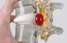Care sunt simptomele și stadiile herniei de disc și cum poate fi tratată fără operație