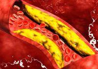 Ce înseamnă un colesterol bun și de la ce valori trebuie să ne îngrijorăm