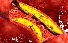 8 super alimente care vă scapă de colesterol