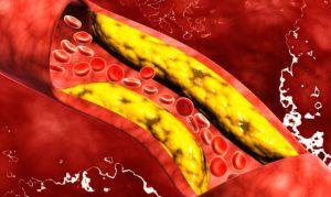 8 super alimente care va scapa de colesterol