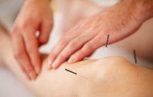 Tratamentul alternativ al gonartrozei. Cum scapi de durerile de genunchi cu ajutorul acelor