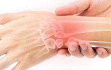 Boala gravă care se ascunde în durerile de la încheietura mâinii. Care sunt cauzele și cum se tratează sindromul de tunel carpian, explicate de neurochirurg