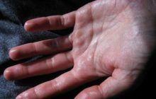 Este atât de neplăcut să ai palmele transpirate! Cum putem scăpa de această problemă