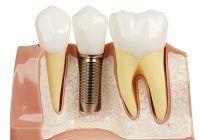 Dinți noi într-o singură zi. Implantul dentar rapid