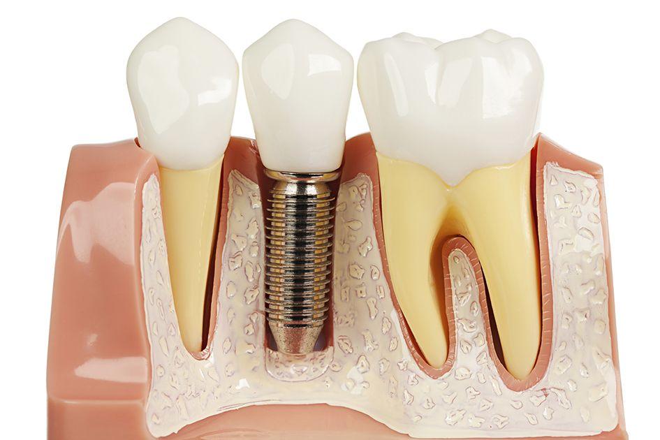 Implantul dentar, varianta digitală. Tehnologie ca-n filme pentru o dantură pe viață