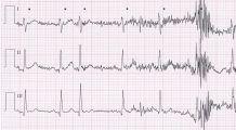 Când trebuie să ne îngrijoreze pulsul neregulat al inimii! Poate fi semnul fibrilației atriale, boala care conduce la accident vascular cerebral