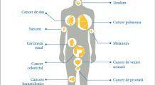 Imunoterapia oncologică, cea mai nouă și promițătoare INOVAȚIE în lupta împotriva CANCERULUI, la nivel mondial