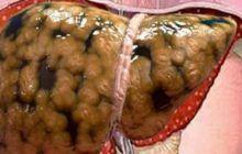 Antidotul ficatului gras. Soluția naturală și eficientă
