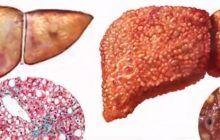 Ficatul gras sau steatoza hepatică. Boala care avansează lent și poate duce la complicații grave sau cancer