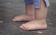 OBEZITATEA și excesul de carne pot duce la apariția PIETRELOR la  RINICHI la copii
