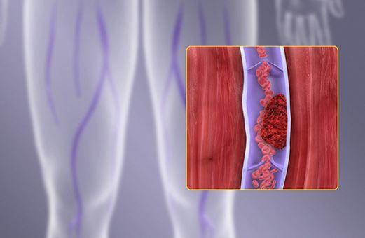 Un tânăr cu cea mai gravă formă de tromboză a fost salvat cu o intervenție endovasculară în premieră națională