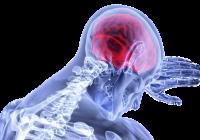 Hidrocefalia, acumularea anormala de lichid cefalorahidian la nivelul craniului sau măduvei spinării. Care sunt riscurile și cum se tratează această boală