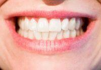Bruxismul – scrâșnitul din dinți, o afecțiune dentară frecventă, declanșată de factori genetici, fizici sau psihologici