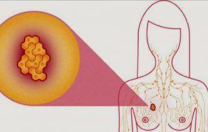 Noi metode de diagnosticare timpurie a cancerului mamar. Ce este tehnica ganglionului-santinela
