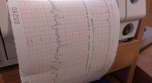 Când este indicată ecografia DOPPLER și cum îți poate salva viața