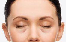 Cum poți scăpa rapid de inesteticele PUNGI de sub ochi