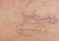 Unul dintre cele mai eficiente tratamente pentru afecțiunile vasculare. Cum scăpăm de rețeaua de vase sparte