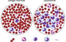 Leucemia Mieloidă Cronică – LMC, forma rară de cancer care afectează celulele sângelui