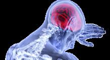 Cele mai periculoase alimente pentru creier! Fac ravagii în organism