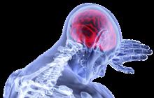 7 simptome ale cancerului la creier. Toată lumea trebuie să le cunoască