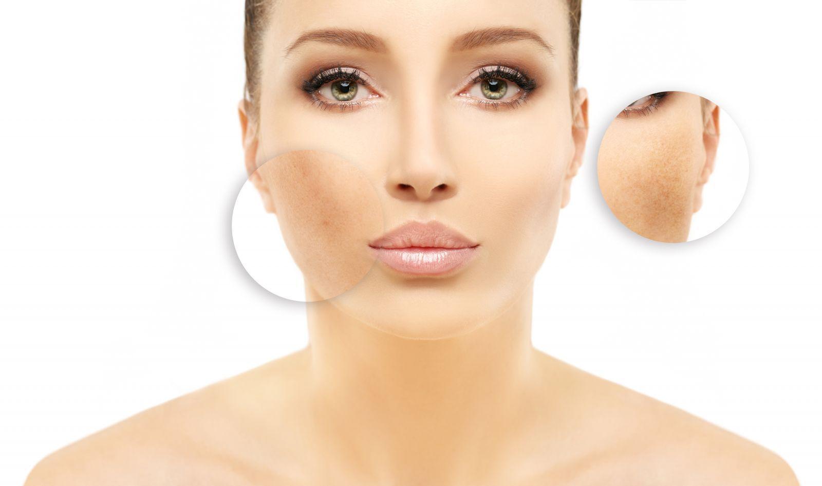 Cauzele apariției petelor pe piele! Ce boli grave pot anunța?