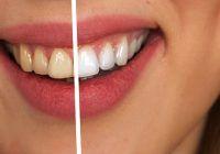 Cum se face albirea dinților. Lucruri foarte importante de știut, atunci când vrei să apelezi la această procedură