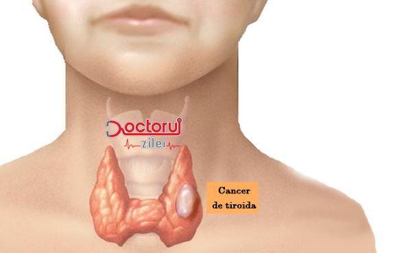 Aceste persoane sunt cele mai expuse cancerului de tiroidă. Care sunt SIMPTOMELE