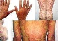 """Medic dermatovenerolog: """"Psoriazisul este mai mult decât o boală de piele, este o afecţiune care trece de bariera tegumentului"""""""