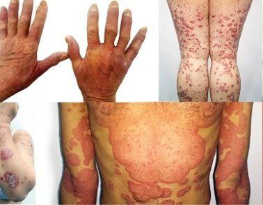 osteopat în tratamentul artrozei unguent de la încălzirea articulațiilor