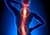 Scolioza, cea mai frecventă afecțiune la nivelul coloanei. Simptome și tratament
