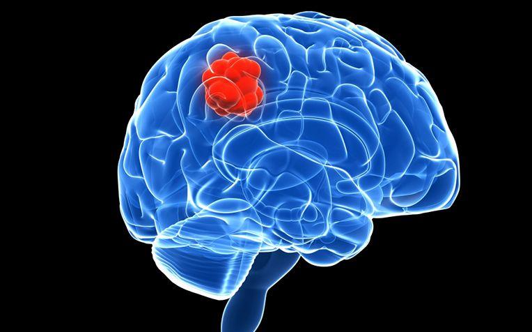 Tumorile cerebrale nu pot fi prevenite. Primul semn și cel mai important: durerea violentă de cap - Președintele Academiei Mondiale de Neurochirurgie