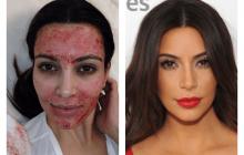 """În ce constă terapia """"vampir"""", tratamentul revoluționar de reîntinerire a pielii"""